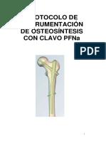 Instrumentacion con clavo PFNa- traumatologia