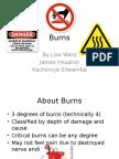 Burn Presentation