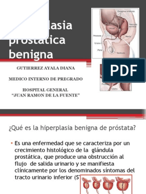 síntomas de próstata en 399