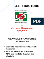 Clavicula Fracture
