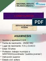 Caso Clinico- Derrame Pleural