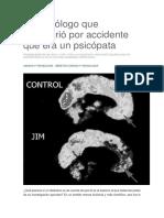 El Neurólogo Que Descubrió Por Accidente Que Era Un Psicópata