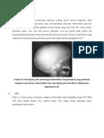 gambaran radiologi hidrosefalus