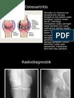 Osteoartritis 2