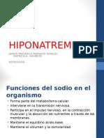 HIPONATREMIA NEFROLOGÍA