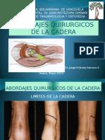 Abordajes Quirurgicos de La Cadera
