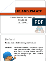 Cleft Lip and Palate Gustaf