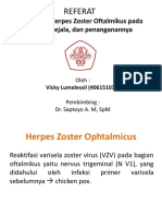 Herpes Zoster Ophtalmicus