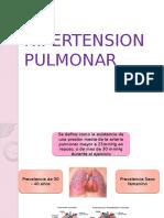 hipertencion pulmonar