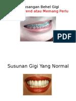 Pemasangan Behel Gigi