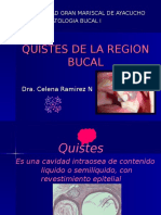 QUISTES DE LA REGION BUCAL.ppt