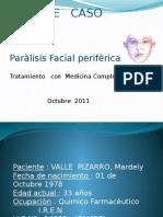 paralisis facial.pptx