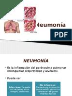 Neumonia Practicas