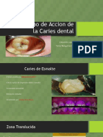 Mecanismo de Accion de La Caries Dental