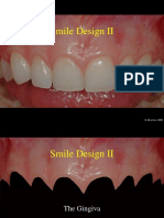 Smile Design II