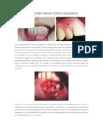 Periodontitis Apical Crónica Supurativa
