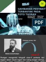 radio thorax patologis.pptx