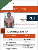 Tutorial Klinik Lani Vitiligo