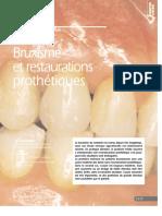 Bruxisme Et Restauration Prothétique _ Inf Dentaire 99