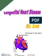It 3 - Penyakit Jantung Bawaan - Ria