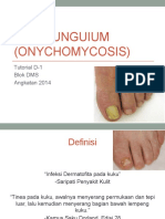 TINEA Unguium (Onychomycosis)