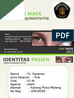Keratokonjunctivitis