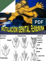 Circuncisión femenina
