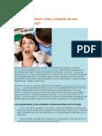 Qué Se Debe Hacer Antes y Después de Una Extracción Dental