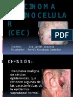 Carcinoma Espinocelular Exposicion Ramiro