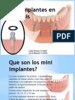 Mini Implantes en Prótesis.pptx