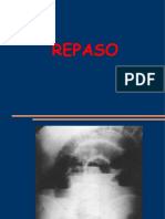 REPASO RM