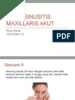 RHINOSINUSITIS MAXILLARIS AKUT