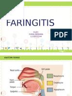 Faringitis Chika