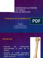 Fracturas de La Diafisis Humeral