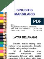 152776900 PPT Referat Sinusitis
