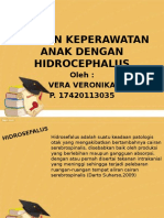 Ppt Hidrocephalus Fix