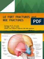 Lefort fracturefinal.ppt