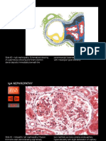 IgA Glomerulonephritis