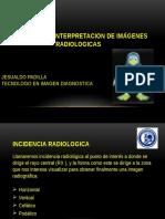 Incidencias e Interpretacion de Imágenes Radiologicas
