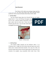 Stomatitis Aphthous Recurrent