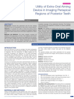 Utility of Extra-Oral Aiming Device in Imaging Periapical Regions of Posterior Teeth