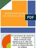 Adenocarcinoma de Vesicula Biliar