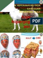 Askep ggn  pigmentasi kulit  SCL.ppt