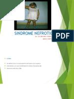 4-SINDROME-NEFROTICO