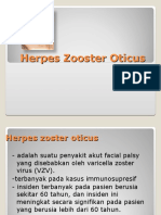 Herpes Zooster Oticus