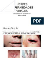 Herpes Simple y Herpes Zoster