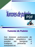 Tumores de pulmon