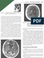 Convulsiile si epilepsia la copii