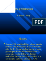 Retinoblastoma Case Presentation