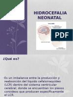Hidrocefalia .pptx